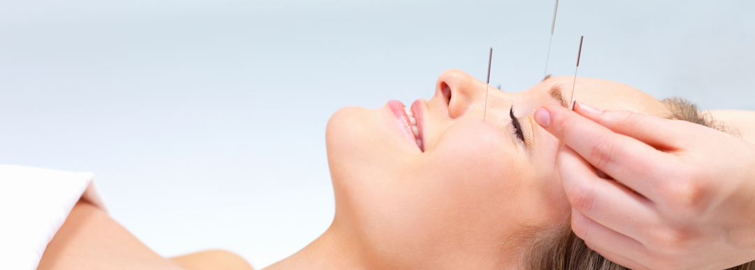 Woman getting Facial Acupuncture